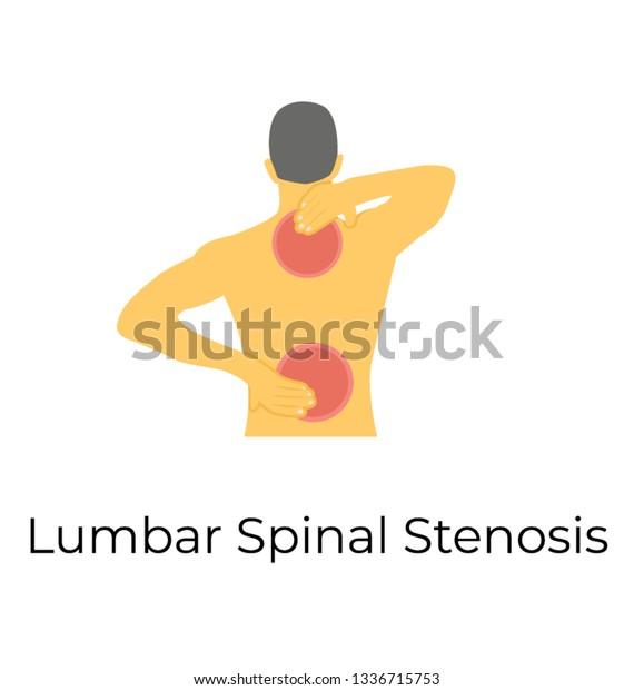 Lumbar Spinal Stenosis Flat Vector Icon Stock Vector (Royalty Free