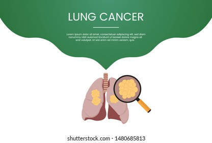 lung cancer healthcare concept theme for template banner or landing homepage infographics - vector