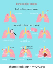 Lung cancer stages. Stage 0 through 4. Vector medical illustration.