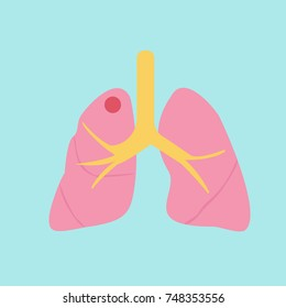 Lung disease infographic. Vector medical illustration.