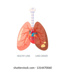 Lungs cancer concept. Vector illustration in flat style for medical articles, posters, web banners, infographics etc.