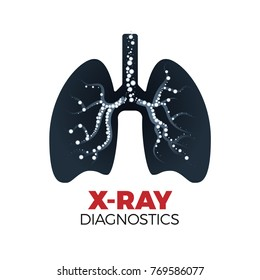 Lungs x-ray diagnostics vector concept. Tuberculosis or cancer prevention. Illustration of lungs silhouette filled with radiated round shapes. Isolated on white background.