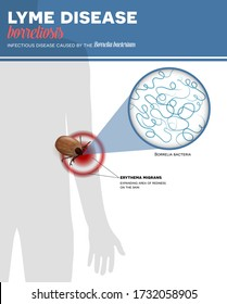 Lyme borreliosis infection caused by tick bite, colorful info poster