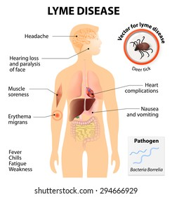 Lyme disease or Lyme borreliosis is an infectious illness transmitted by ticks that can affect dogs and people. Signs and symptoms. Human silhouette with highlighted internal organs.
