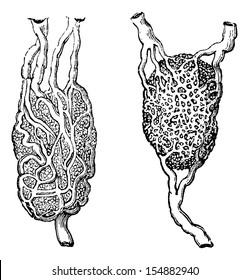 Lymph nodes, vintage engraved illustration. Usual Medicine Dictionary - Paul Labarthe - 1885.