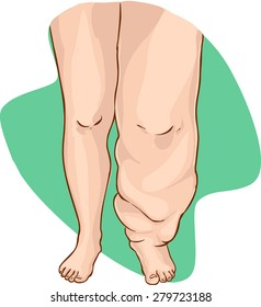 Lymphedema of the disease