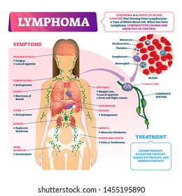 Lymphoma diagnosis vector illustration. Labeled educational blood cancer type scheme. Disease treatment and symptoms list. Patient with sick blood cell closeup and isolated lymphatic system diagram.