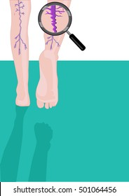 A magnified concept of muscular or leg problem like muscle spasms, cramps, varicose and spider veins or medical conditions due to age or sports. Editable Clip art.