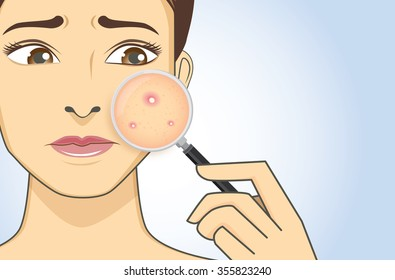 A magnifier on hand magnifying the woman facial to finding acne on her face area. She is feeling stress because of acne.