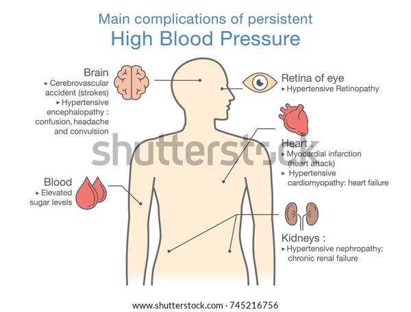 high blood preesure