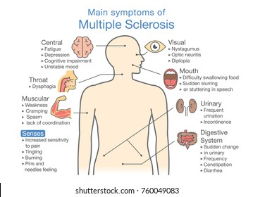 Main symptoms of Multiple Sclerosis. Illustration about medical diagram of health check up.