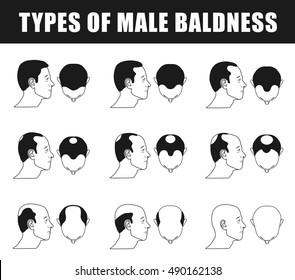 male baldness closeup, types of mans bald progress