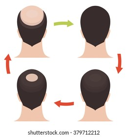 Male baldness pattern stages set. Rear view of a man with alopecia before and after hair treatment and transplantation. Vector illustration.