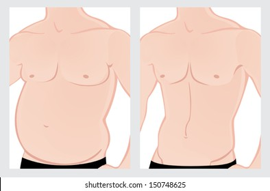 Male fat belly before and after the treatment. Vector illustration on a white background. File is not flattened.