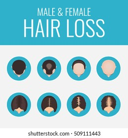 Male and female pattern hair loss set. Stages of baldness in men and women. Alopecia infographic medical design template.  Vector illustration.