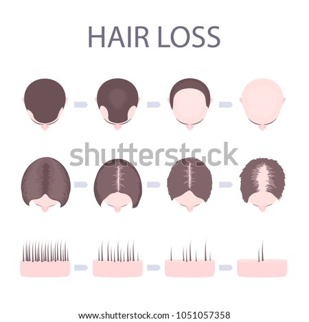 Male Female Pattern Hair Loss Set Stock Vector Royalty Free Magnificent Female Pattern Baldness Pictures