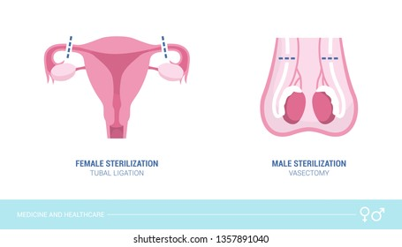 Male and female sterilization procedures: vasectomy and tubal ligation, healthcare and birth control concept
