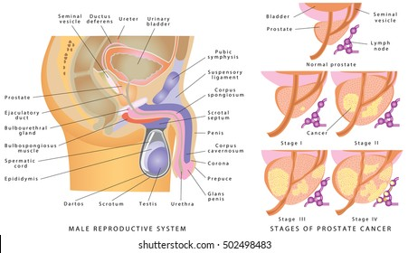 The Male Urethra Images Stock Photos Vectors Shutterstock