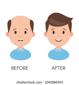 Male hair loss. Man with alopecia problem before and after hair treatment and transplantation. Vector illustration isolated on white background