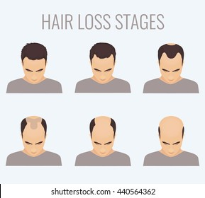 Male hair loss stages set. Top view portrait of a balding man. Baldness pattern scheme. Vector illustration.