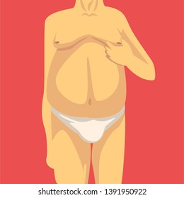 Male Torso with Fat Belly and Sagging Breast, Human Body After Weight Loss, Front View, Obesity and Unhealthy Eating Problems Vector Illustration