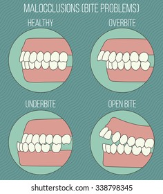 Malocclusion problems, bad bite infographic. Orthodontic set.
