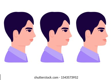Malocclusion, young man in profile. Wrong bite: lower jaw extended forward and retracted. Bite correction with braces. Vector illustration