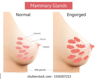 Mammary gland, Non-Lactating and Engorged breast, Female breast Anatomy, illustration Vector.