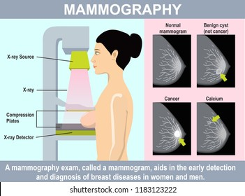 Mammography infographics. Woman get mammograms for breast cancer screening. Illustration about protection breast cancer with medical technology. Using low energy X-rays to examine the woman breast.