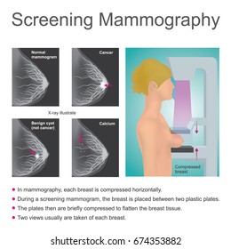 Mammography is the process of using low energy X-rays to examine the woman breast for diagnosis and screening. The goal of mammography is the early detection of breast cancer. Illustration vector.