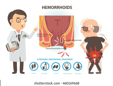 Man ache of hemorrhoids and Doctors to talk to patients. Diagram the anal anatomy. internal and external hemorrhoids