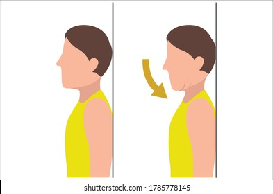 Man Doing Chin Tuck Stretches Poses Silhouette Flat Illustration Isolated on White Background in Different Poses - Physical Therapy