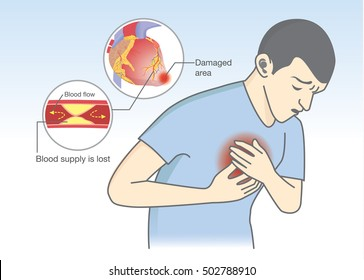 Man have early symptoms of heart attack. Blood flow get blocked by fatty which that is cause angina and heart attack. Health and medical illustration.