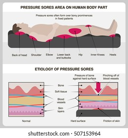 Man with pressure sores. Pressure sores area on human body part and etiology of pressure sores. Vector illustration.
