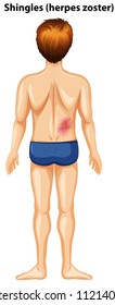 A Man with Shingles at the Back illustration