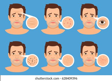 Man skin problems vector illustration. Male face with pimples and dark spots, wrinkles and acne