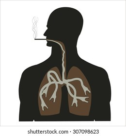 man smokes with diseased lungs silhouetted on a white background