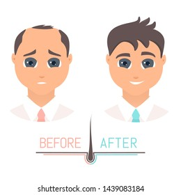 Man with thinning hair before and after hair loss transplantation. Male pattern baldness set with follicle diagram.Treatment result outcome in front view. Alopecia infographics medical vector template