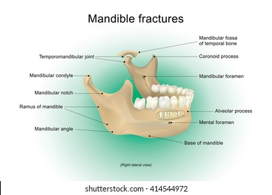 Mandibular fracture, also known as fracture of the jaw, is a break through the mandibular bone. It may result in a decreased ability to fully open the mouth.