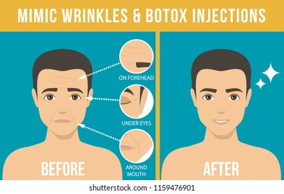 Man's anti-aging skin care and men's cosmetics. Different types of facial wrinkles. Man before and after Botox injection. Anti-aging procedure. Vector