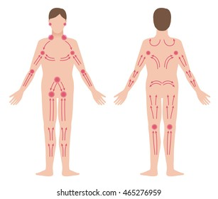 Enlarged lymph nodes images stock photos vectors shutterstock mans lymphatic massage diagram front and back view treatment of the swelling vector ccuart Gallery