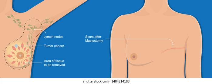 Mastectomy breast cancer axillary lymph node dissection chance prevent risk mammography recovery detect diagnosis mammogram symptom infection fluid swelling pain hormonal life bruise bleeding illness