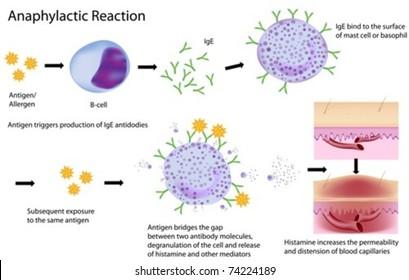 Mechanism of allergy (drug,hay fever, asthma,..),