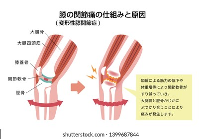 Mechanism and causes of knee joint pain (gonarthrosis / osteoarthritis / arthrosis of knee ) . flat illustration (japanese) . translation: Femur,Patella,Articular cartilage,Tibia etc.