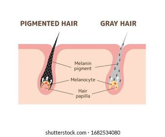 Mechanism of pigmented hair and gray hair / comparison vector illustration