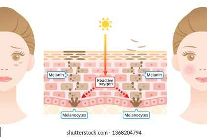 mechanism of skin cell turnover and facial dark spots. Melanin and melanocytes in human skin layer with woman face. beauty and skin care concept