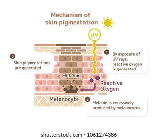 mechanism of skin pigmentation / skin spot illustration (with explanation )