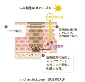 mechanism of skin pigmentation / skin spot illustration. translation: UV,malanin,melanocyte,reactive oxygen/1. by exposure of UV, reactive oxygen is generated/2.melanin is excessively produced by...