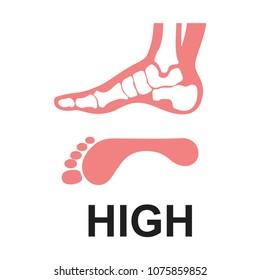 Medial foot anatomy Human foot with bones