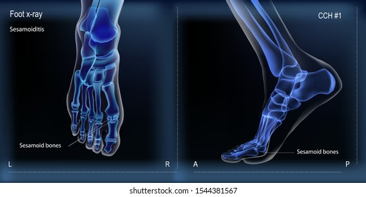 Medial and top view x ray of bones the of foot with sesamoid.
